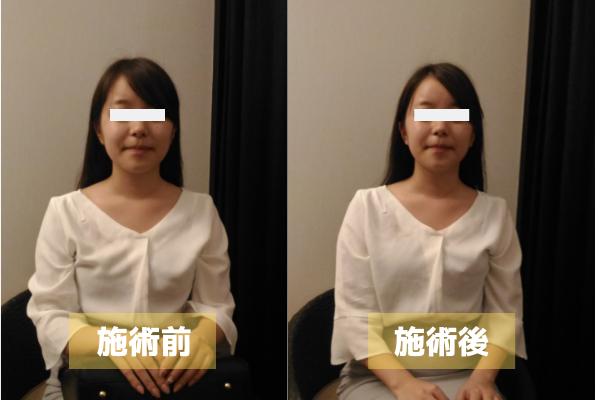 小顔施術例1