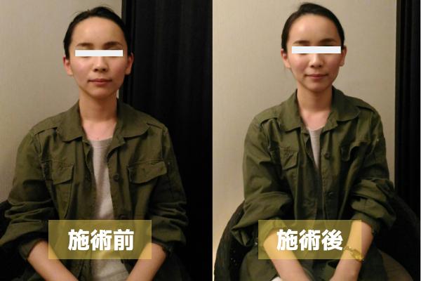 小顔施術例2